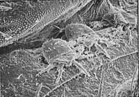 Mitesonadermestid
